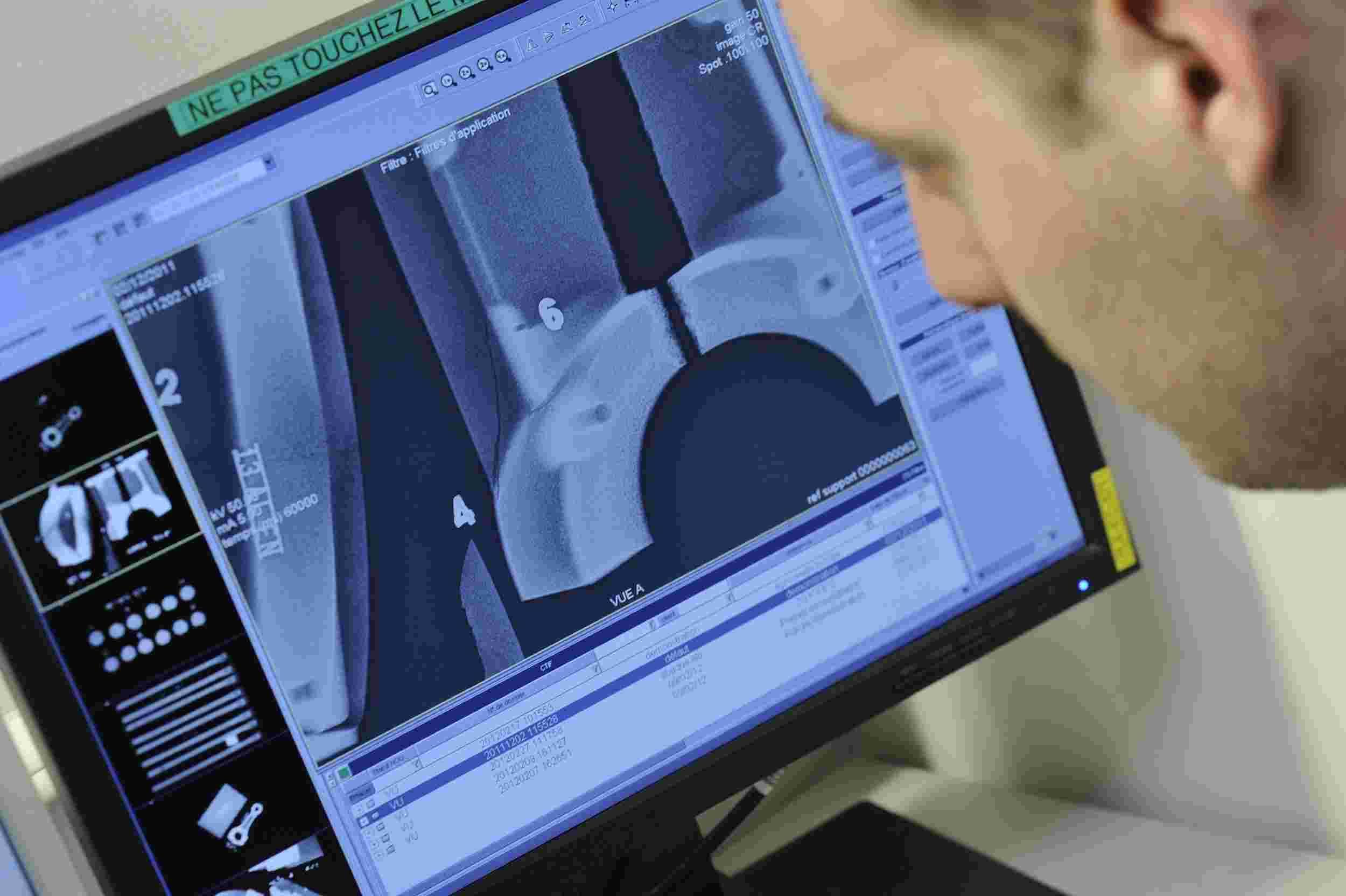 Radiographie niveau 2